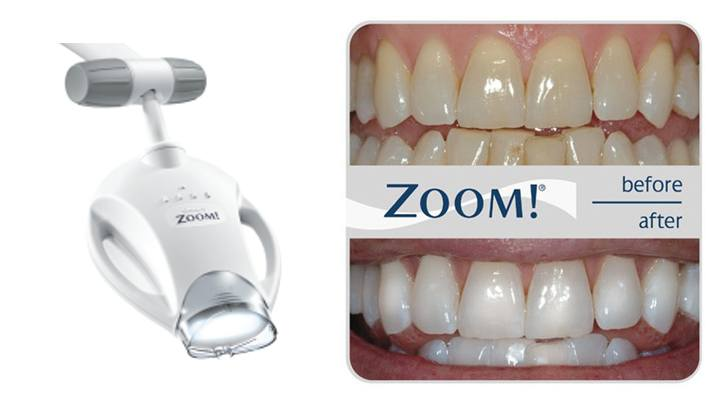 Lampa Philips Zoom