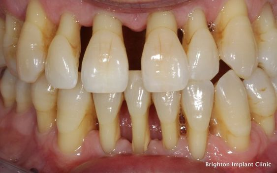 Boala parodontală 1