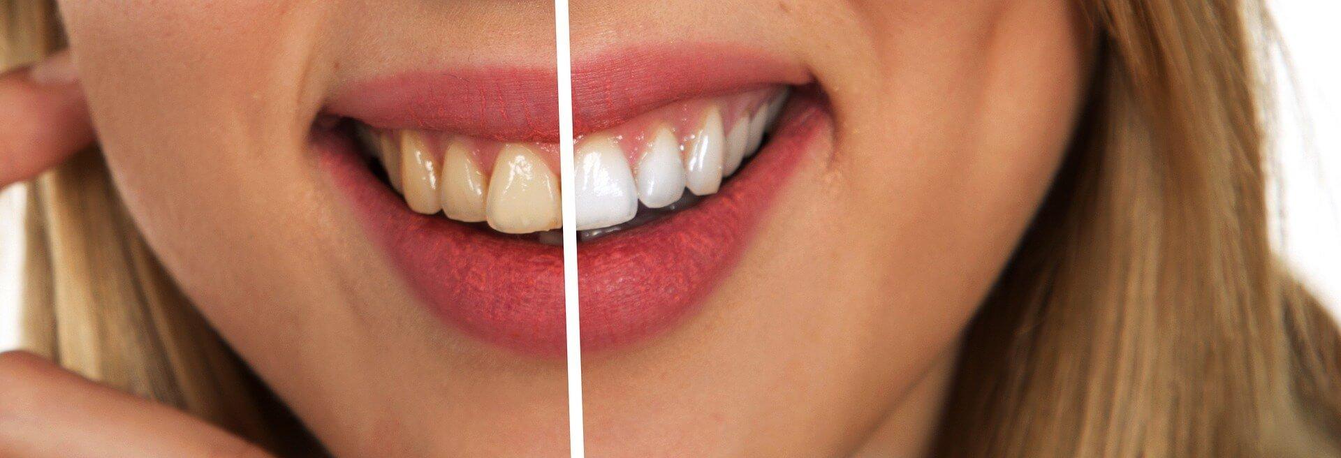 albirea dentară 1