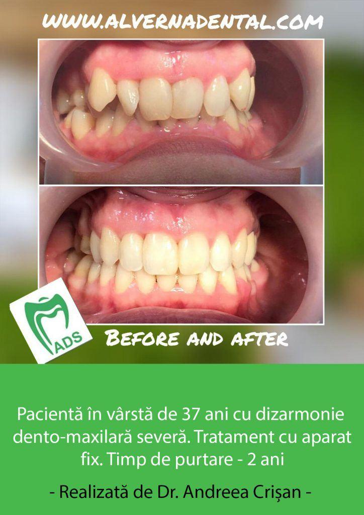 Dr.-Andreea-Crisan-1-724x1024