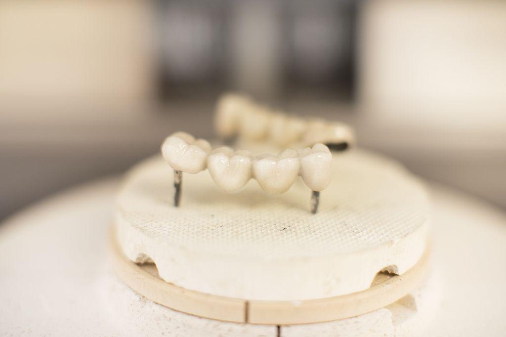 implant-dentar-home
